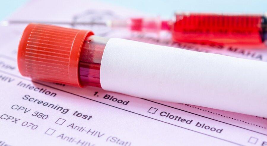 نکته بهداشتی، آزمایش های غربالگری بیماری ها