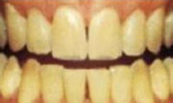 چرا رنگ دندان عوض می گردد؟